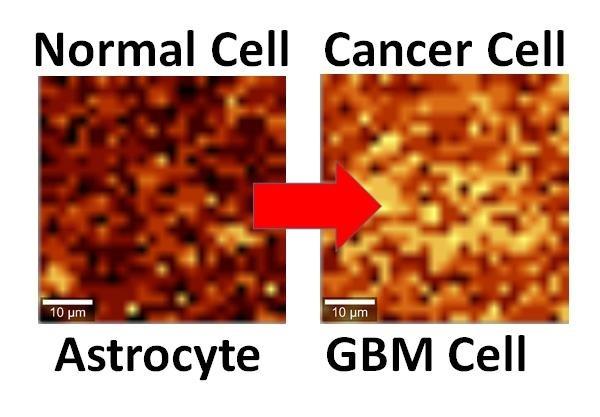 万能材料石墨烯再立功!可用于检测癌症